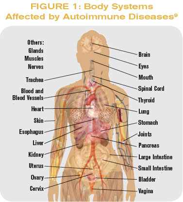 body-systems-auto-immune, Muscles